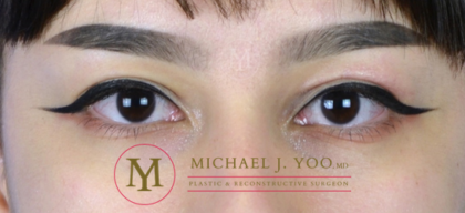 Upper Eyelid Lift Before & After Patient #3115
