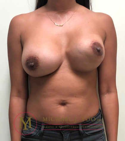 Breast Lift with Implants Before & After Patient #3118