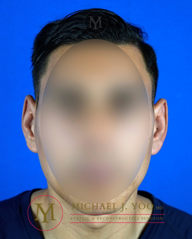 Otoplasty Before & After Patient #3188