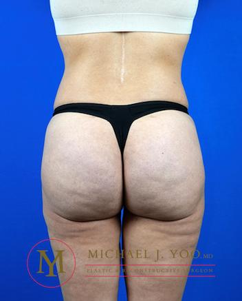 Brazilian Butt Lift Before & After Patient #3217
