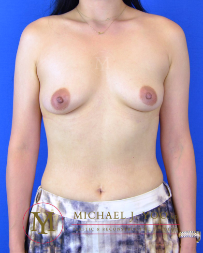 Breast Augmentation Before & After Patient #3248