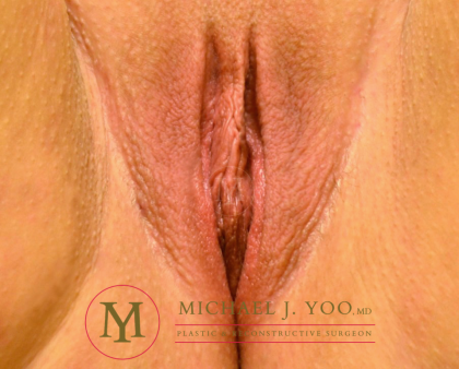 Labiaplasty Before & After Patient #3263
