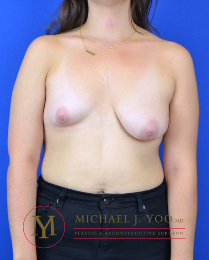 Breast Lift with Implants Before & After Patient #3245