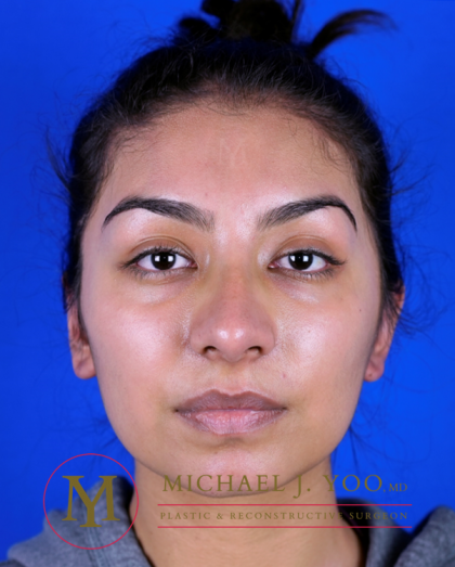 Otoplasty Before & After Patient #3255