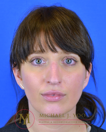 Rhinoplasty Before & After Patient #3295