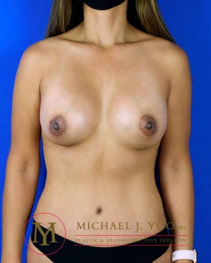 Breast Augmentation Before & After Patient #3307